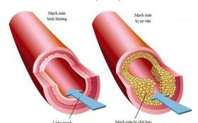 Các biến chứng nguy hiểm của bệnh cao huyết áp