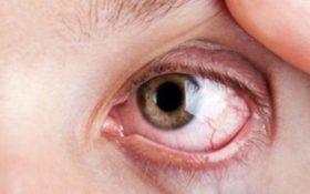 Biến chứng về mắt do tăng huyết áp