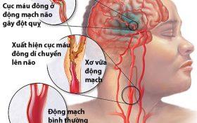 Tại sao tăng huyết áp lại dễ xảy ra tai biến?